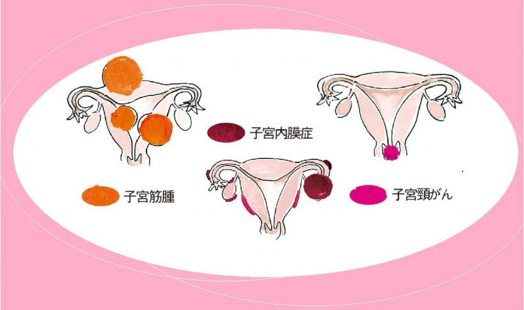 小さなサインを見逃さないで 注意したい子宮まわりの病気とその症状